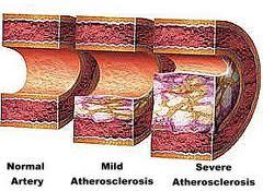prevcholesterolucpavanicev.jpg